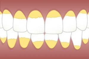 lasersko-odstranjevanje-zobnega-kamna